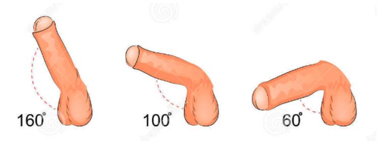 Como debe ser una ereccion normal