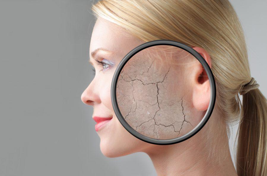 Consejos para tratar la piel seca